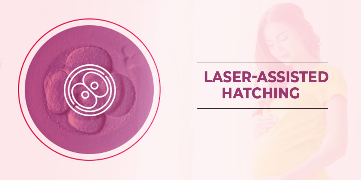 Laser-Assisted-Hatching