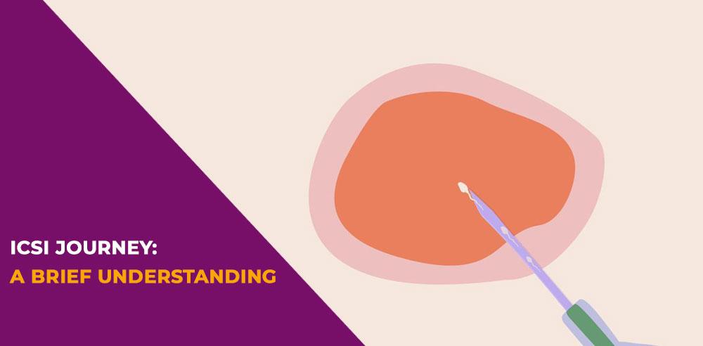 ICSI journey A brief understanding - Zeeva Fertility